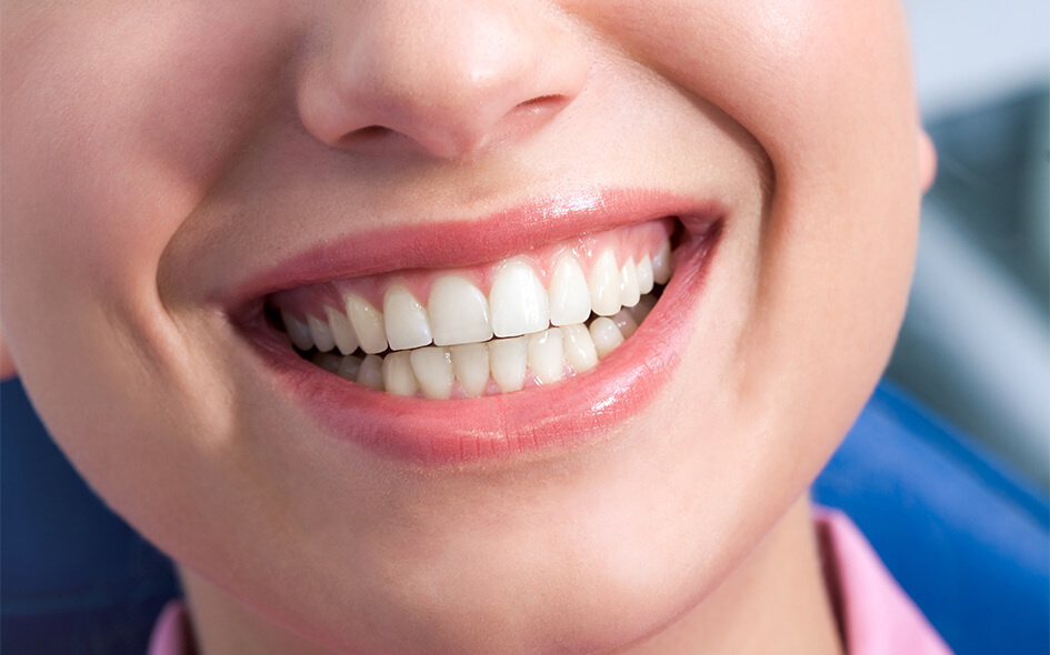 Teeth Whitening in Houston, TX